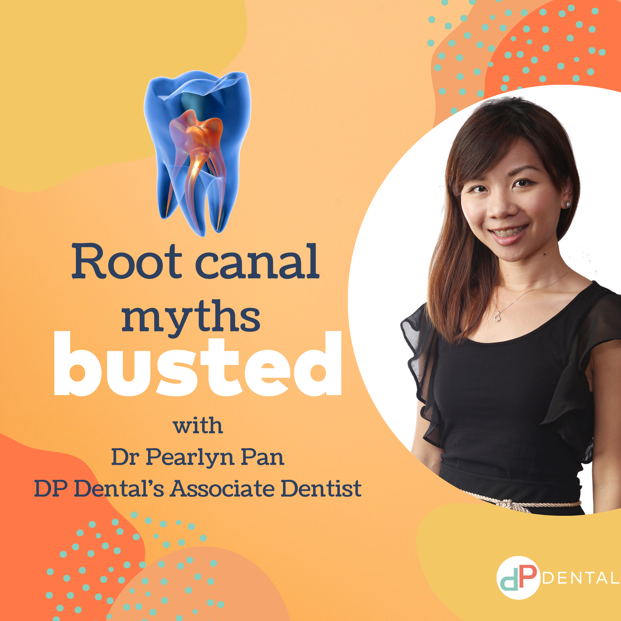 5 Root Canal Myths Busted