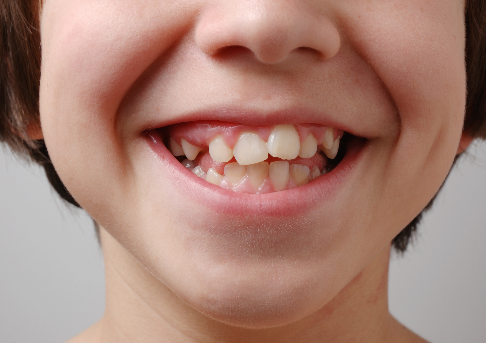 The importance of early intervention and habit correction to address crooked teeth