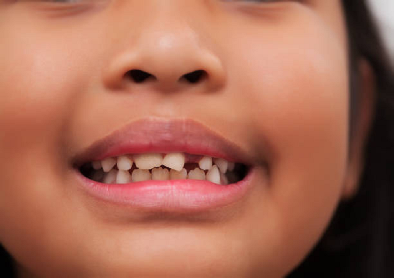 Should I be worried if my child's teeth are coming in crooked?