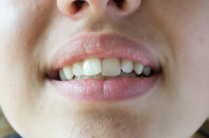 Misaligned Teeth and Bite Problems: An Overview